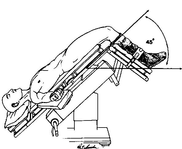 Prostatectomy positioning